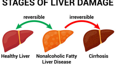 11 Warning Signs Of Nonalcoholic Fatty Liver Disease