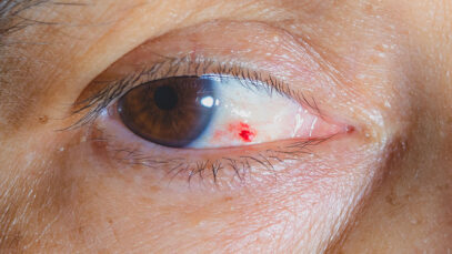 Reoccurring blood spots in your eye