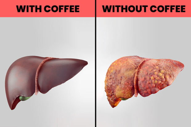 Drink more coffee for a healthy gallbladder